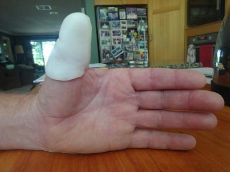 Thumb prosthesis